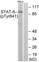 STAT6 Antibody - Western blot analysis of lysates from HeLa cells treated with IL-4, using STAT6 (Phospho-Tyr641) Antibody. The lane on the right is blocked with the phospho peptide.