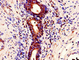 Immunohistochemistry of paraffin-embedded human prostate cancer using STAU1 Antibody at dilution of 1:100