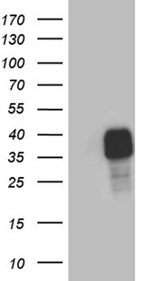 STC1 / Stanniocalcin Antibody - HEK293T cells were transfected with the pCMV6-ENTRY control. (Left lane) or pCMV6-ENTRY STC1. (Right lane) cDNA for 48 hrs and lysed