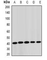 Western blot analysis of STK19 expression in Jurkat (A); HepG2 (B); mouse liver (C); rat lung (D); rat brain (E) whole cell lysates.