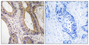 Immunohistochemistry analysis of paraffin-embedded human colon carcinoma tissue, using STK24 Antibody. The picture on the right is blocked with the synthesized peptide.