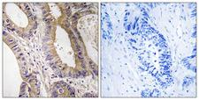STK24 / MST3 Antibody - Immunohistochemistry analysis of paraffin-embedded human colon carcinoma tissue, using STK24 Antibody. The picture on the right is blocked with the synthesized peptide.