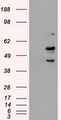 HEK293T cells were transfected with the pCMV6-ENTRY control (Left lane) or pCMV6-ENTRY STK3 (Right lane) cDNA for 48 hrs and lysed. Equivalent amounts of cell lysates (5 ug per lane) were separated by SDS-PAGE and immunoblotted with anti-STK3.