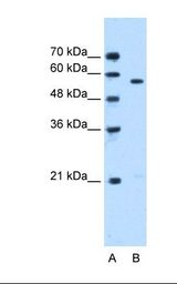 STK3 Antibody - Lane A: Marker. Lane B: Jurkat cell lysate. Antibody concentration: 0.5 ug/ml. Gel concentration: 12%.  This image was taken for the unconjugated form of this product. Other forms have not been tested.