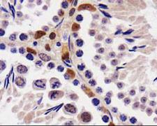 STK33 Antibody - STK33 Antibody - IHC of STK33 in mouse testis.  This image was taken for the unconjugated form of this product. Other forms have not been tested.