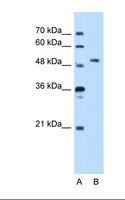 STK39 / SPAK Antibody - Lane A: Marker. Lane B: HepG2 cell lysate. Antibody concentration: 5.0 ug/ml. Gel concentration: 12%.  This image was taken for the unconjugated form of this product. Other forms have not been tested.