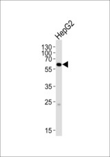 Western blot of lysate from HepG2 cell line, using SPAK Antibody (A363). Antibody was diluted at 1:1000. A goat anti-rabbit IgG H&L (HRP) at 1:10000 dilution was used as the secondary antibody. Lysate at 20ug.