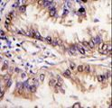 Formalin-fixed and paraffin-embedded human lung carcinoma tissue reacted with STK39 antibody , which was peroxidase-conjugated to the secondary antibody, followed by DAB staining. This data demonstrates the use of this antibody for immunohistochemistry; clinical relevance has not been evaluated.