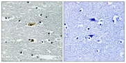 Immunohistochemistry analysis of paraffin-embedded human brain, using STK39 (Phospho-Ser311) Antibody. The picture on the right is blocked with the phospho peptide.