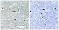 STK39 / SPAK Antibody - Immunohistochemistry analysis of paraffin-embedded human brain, using STK39 (Phospho-Ser311) Antibody. The picture on the right is blocked with the phospho peptide.
