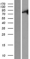 STKLD1 / SgK071 Protein - Western validation with an anti-DDK antibody * L: Control HEK293 lysate R: Over-expression lysate