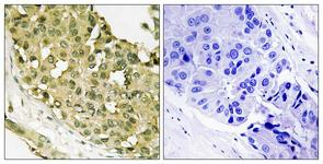 IHC of paraffin-embedded human breast carcinoma, using STMN1 (Phospho-Ser62) Antibody. The sample on the right was incubated with synthetic peptide.
