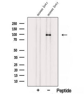 STRA6 Antibody - Western blot analysis of extracts of mouse liver tissue using STRA6 antibody. The lane on the left was treated with blocking peptide.