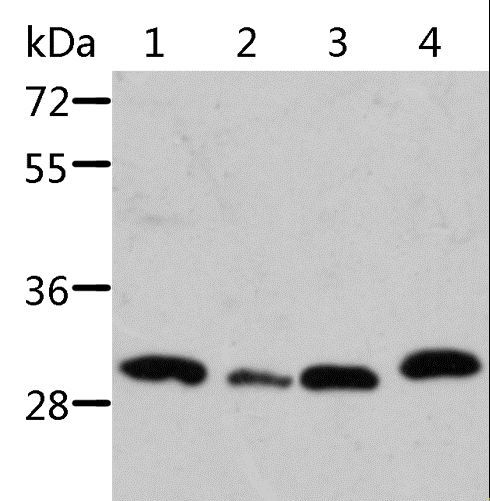 STRADB / ALS2CR2 Antibody - Western blot analysis of Mouse pancreas and spleen tissue, mouse heart tissue and 293T cell, using STRADB Polyclonal Antibody at dilution of 1:500.