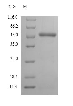 CTPS Protein - (Tris-Glycine gel) Discontinuous SDS-PAGE (reduced) with 5% enrichment gel and 15% separation gel.