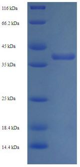 hup1/DNA-Binding Protein HU 1 Protein