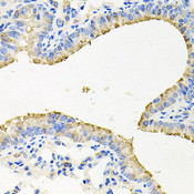 Immunohistochemistry of paraffin-embedded mouse lung tissue.