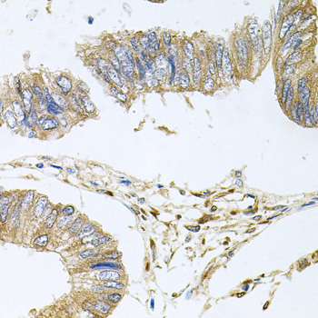 Immunohistochemistry of paraffin-embedded human colon carcinoma tissue.