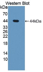 Western blot of STS / ASC / Steroid Sulfatase antibody.
