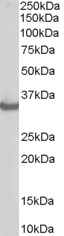 Antibody staining (0.3 ug/ml) of Human Muscle lysate (RIPA buffer, 35 ug total protein per lane). Primary incubated for 1 hour. Detected by Western blot of chemiluminescence.
