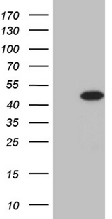 STX18 / Syntaxin 18 Antibody - HEK293T cells were transfected with the pCMV6-ENTRY control. (Left lane) or pCMV6-ENTRY STX18. (Right lane) cDNA for 48 hrs and lysed. Equivalent amounts of cell lysates. (5 ug per lane) were separated by SDS-PAGE and immunoblotted with anti-STX18. (1:2000)