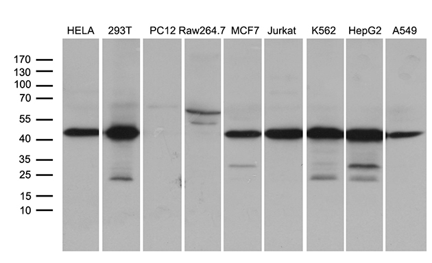 STX18 / Syntaxin 18 Antibody - Western blot analysis of extracts. (35ug) from 9 different cell lines by using anti-STX18 monoclonal antibody. (1:500)