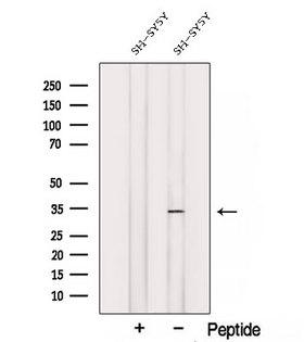 STX3 / Syntaxin 3 Antibody - Western blot analysis of extracts of SH-SY5Y cells using Syntaxin3 antibody. The lane on the left was treated with blocking peptide.