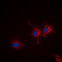 Immunofluorescent analysis of p67 staining in Jurkat cells. Formalin-fixed cells were permeabilized with 0.1% Triton X-100 in TBS for 5-10 minutes and blocked with 3% BSA-PBS for 30 minutes at room temperature. Cells were probed with the primary antibody in 3% BSA-PBS and incubated overnight at 4 deg C in a humidified chamber. Cells were washed with PBST and incubated with a DyLight 594-conjugated secondary antibody (red) in PBS at room temperature in the dark. DAPI was used to stain the cell nuclei (blue).