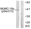 Western blot analysis of lysates from COS7 cells treated with PMA 125ng/ml 30', using MUNC-18a (Phospho-Ser313) Antibody. The lane on the right is blocked with the phospho peptide.