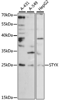 STYX Antibody - Western blot analysis of extracts of various cell lines, using STYX antibody at 1:1000 dilution. The secondary antibody used was an HRP Goat Anti-Rabbit IgG (H+L) at 1:10000 dilution. Lysates were loaded 25ug per lane and 3% nonfat dry milk in TBST was used for blocking. An ECL Kit was used for detection and the exposure time was 180s.