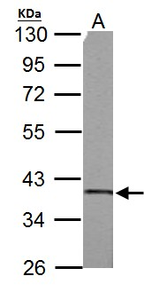 SUCLG1 antibody detects SUCLG1 protein by Western blot analysis. A.50 ug rat brain lysate/extract. 10 % SDS-PAGE. SUCLG1 antibody dilution:1:3000