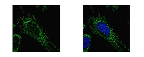 SUCLG1 antibody detects SUCLG1 protein at mitochondria by confocal immunofluorescent analysis. HeLa cells were fixed in 2% paraformaldehyde/culture medium at 37 for 30 min. SUCLG1 protein stained by SUCLG1 antibody diluted at 1:500.