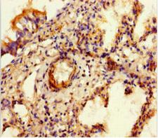 Sulfatase 1 / SULF1 Antibody - Immunohistochemistry of paraffin-embedded human lung tissue at dilution 1:100