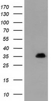 SULT1A1 / Sulfotransferase 1A1 Antibody - HEK293T cells were transfected with the pCMV6-ENTRY control (Left lane) or pCMV6-ENTRY SULT1A1 (Right lane) cDNA for 48 hrs and lysed. Equivalent amounts of cell lysates (5 ug per lane) were separated by SDS-PAGE and immunoblotted with anti-SULT1A1.