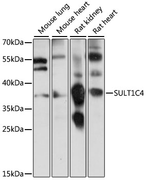 SULT1C4 / Sulfotransferase 1C4 Antibody - Western blot analysis of extracts of various cell lines, using SULT1C4 antibody at 1:1000 dilution. The secondary antibody used was an HRP Goat Anti-Rabbit IgG (H+L) at 1:10000 dilution. Lysates were loaded 25ug per lane and 3% nonfat dry milk in TBST was used for blocking. An ECL Kit was used for detection and the exposure time was 2s.