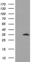 SULT2A1 / Sulfotransferase 2A1 Antibody - HEK293T cells were transfected with the pCMV6-ENTRY control (Left lane) or pCMV6-ENTRY SULT2A1 (Right lane) cDNA for 48 hrs and lysed. Equivalent amounts of cell lysates (5 ug per lane) were separated by SDS-PAGE and immunoblotted with anti-SULT2A1.