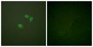 Immunofluorescence analysis of NIH/3T3 cells, using Sumo1 Antibody. The picture on the right is blocked with the synthesized peptide.