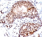 SUMO1 antibody SM1/495 immunohistochemistry tonsil.  This image was taken for the unmodified form of this product. Other forms have not been tested.