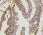 Immunohistochemistry of paraffin-embedded mouse placenta using SUMO1 antibodyat dilution of 1:100 (40x lens).
