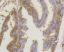 SUMO1 / SMT3 Antibody - Immunohistochemistry of paraffin-embedded mouse placenta using SUMO1 antibodyat dilution of 1:100 (40x lens).
