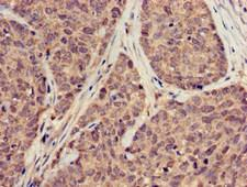 SUMO3 Antibody - Immunohistochemistry of paraffin-embedded human ovarian cancer at dilution of 1:100