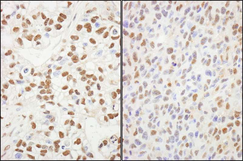Detection of Human and Mouse SUPT6H by Immunohistochemistry. Sample: FFPE sections of human breast carcinoma (left) and mouse squamous cell carcinoma (right). Antibody: Affinity purified rabbit anti-SUPT6H used at a dilution of 1:200 (1 ug/ml). Detection: DAB.