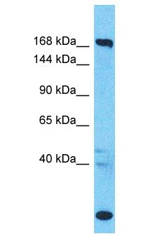 SUPT6H / SPT6 antibody Western Blot of Colorectal Tumor. Antibody dilution: 1 ug/ml.  This image was taken for the unconjugated form of this product. Other forms have not been tested.