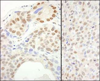 Detection of Human and Mouse SUPT6H by Immunohistochemistry. Sample: FFPE sections of human breast carcinoma (left) and mouse squamous cell carcinoma (right). Antibody: Affinity purified rabbit anti-SUPT6H used at a dilution of 1:1000 (0.2 ug/ml). Detection: DAB.
