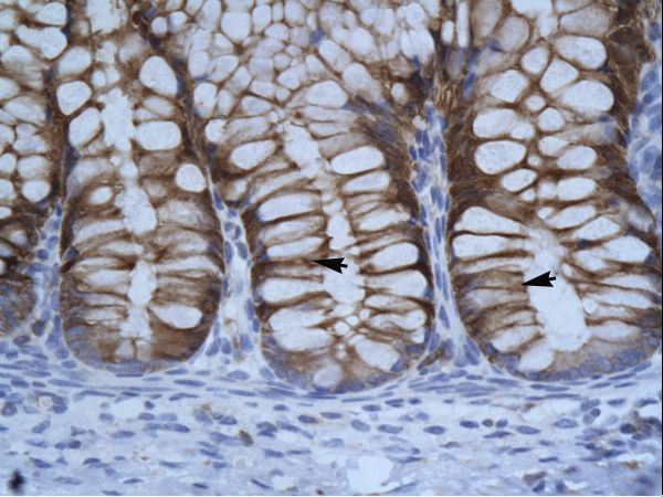 SUV39H1 antibody LS-C30987 was used in IHC to stain formalin-fixed, paraffin-embedded human intestine.  This image was taken for the unconjugated form of this product. Other forms have not been tested.