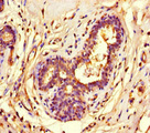 Immunohistochemistry of paraffin-embedded human breast cancer at dilution of 1:100