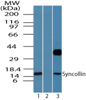 SYCN Antibody - Western blot of syncollin in human pancreas lysate in the 1) absence and 2) presence of immunizing peptide and 3) rat pancreas using Peptide-affinity Purified Polyclonal Antibody to Syncollin at 0.05 ug/ml and 2 ug/ml, respectively.