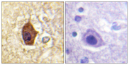 Immunohistochemistry analysis of paraffin-embedded human brain tissue, using Synapsin1 Antibody. The picture on the right is blocked with the synthesized peptide.