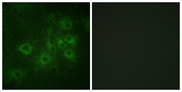 Immunofluorescence analysis of COS7 cells, using Synapsin1 (Phospho-Ser605) Antibody. The picture on the right is blocked with the phospho peptide.