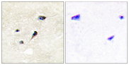 Immunohistochemistry analysis of paraffin-embedded human brain, using Synapsin1 (Phospho-Ser605) Antibody. The picture on the right is blocked with the phospho peptide.